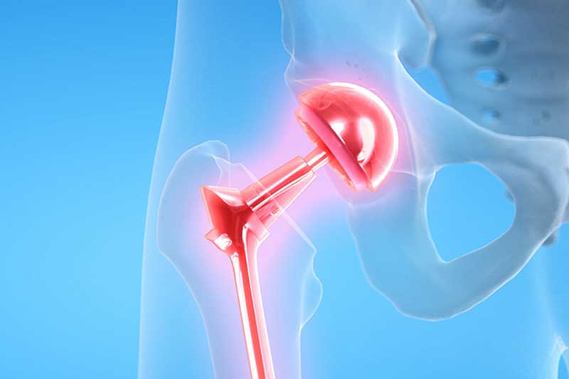 ORTHOPEDICS-JOINT-REPLACEMENT